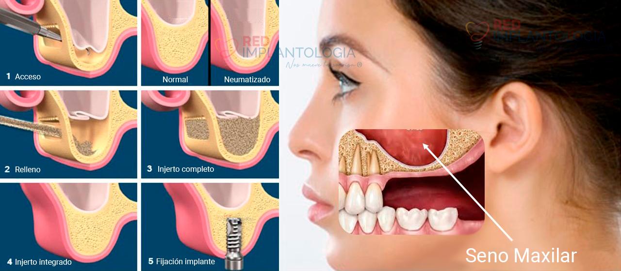 seno-maxilar-relleno