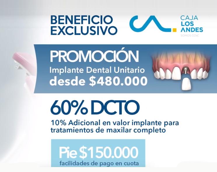 caja-los-andes-implante-dental