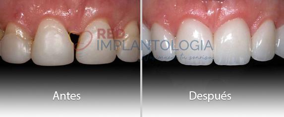 carillas-ceramica-rehabilitacion-oral