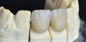 Upper incisors zirconium, particular of the working Multilayer Ceramic.
