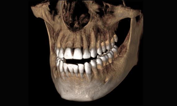 maxilares-HD