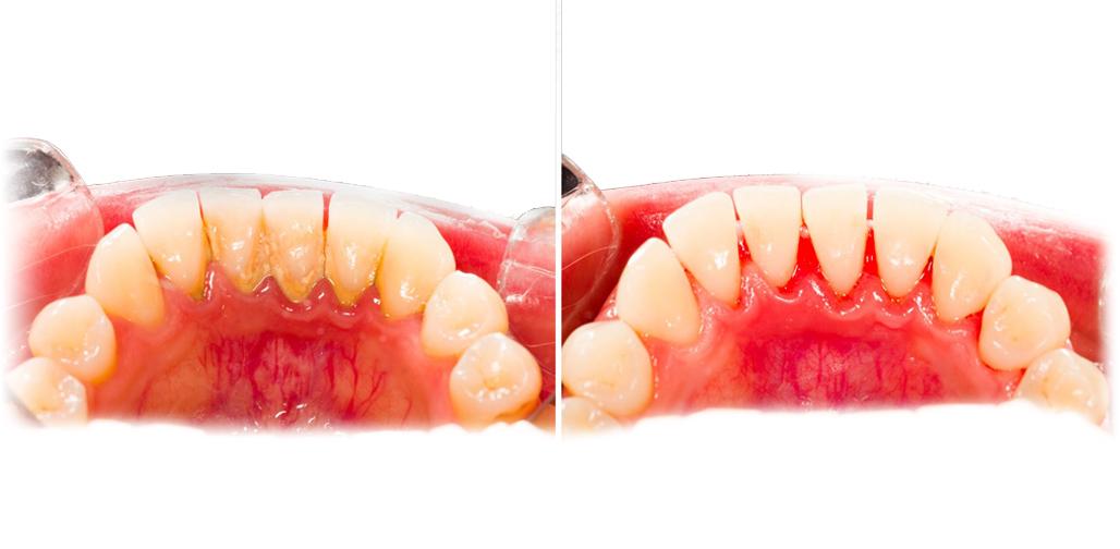 periodoncia-encias