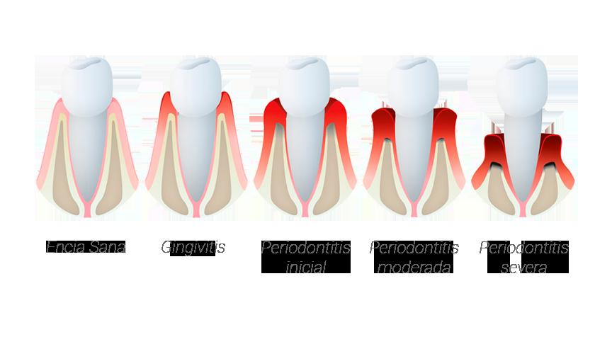 periodoncia-tratamiento-encias