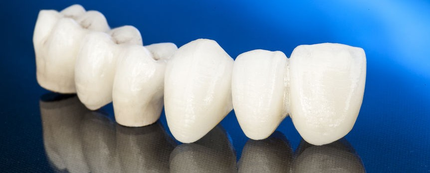 54897876 - metal free ceramic dental crowns