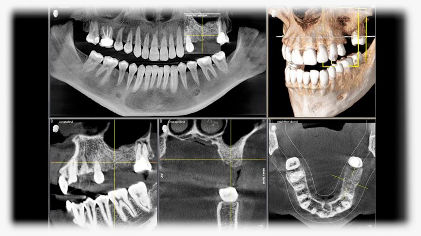 radiologia-maxilofacial