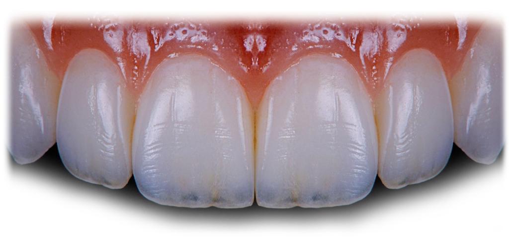 reahabilitacion-estetica-oral