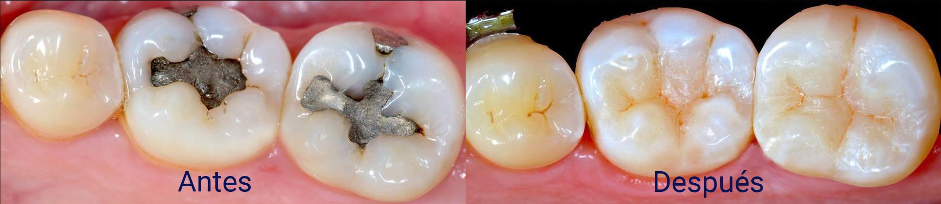 rehabilitacion-antes-despues-dentista